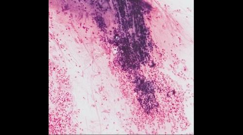 60x Sputum w/ Z-stack embed [imaged with Panoptiq]