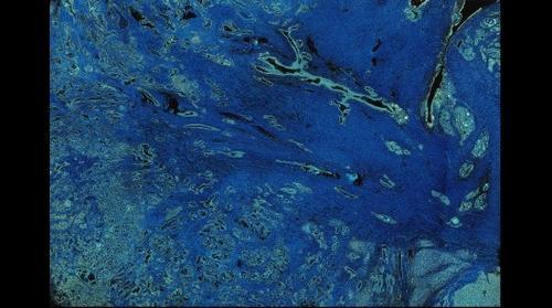 Dreamscape: Human Prostate Tissue Scan