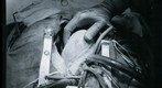 Photo of 35mm Black and White Negative of a Heart Surgery Photo